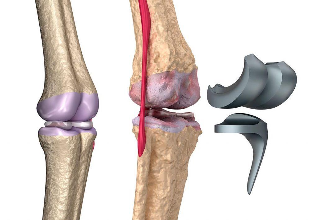 Prótesis de rodilla en Saltillo